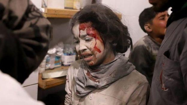 تقول الأمم المتحدة إن أكثر من 1000 شخص من المرضى والمصابين بحاجة للإجلاء<br/>