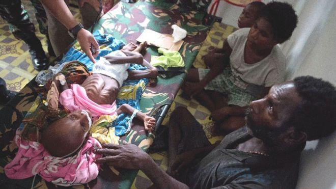 والدا طفلة مصابة بسوء تغذية شديد يحيطان بها في المستشفى في قلق<br/>