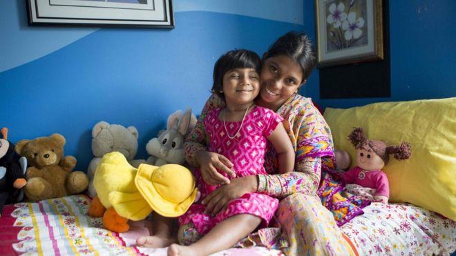 جراحة ناجحة لطفلة بنغالية مولودة بثلاثة أرجل