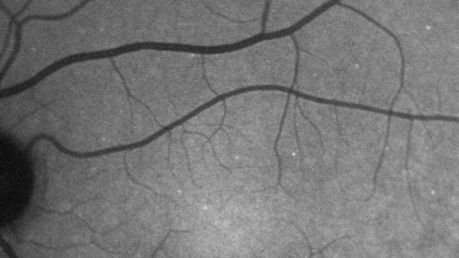 اختبار للعين «يرصد المياه الزرقاء» قبل 10 سنوات من تشخيص الإصابة