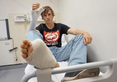 الجراحون وضعوا أصبع القدم الكبير لميتشل في يده<br/>