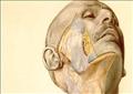 نموذج من الصور التي يحتويها الأطلس تبين تشريح وجه الانسان
