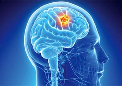 التعليم الجامعى قد يسبب سرطان الدماغ