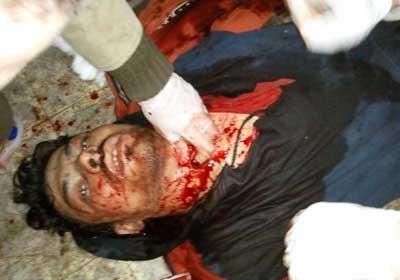 صورة لأحد ضحايا مواجهات التحرير قتل برصاص حي