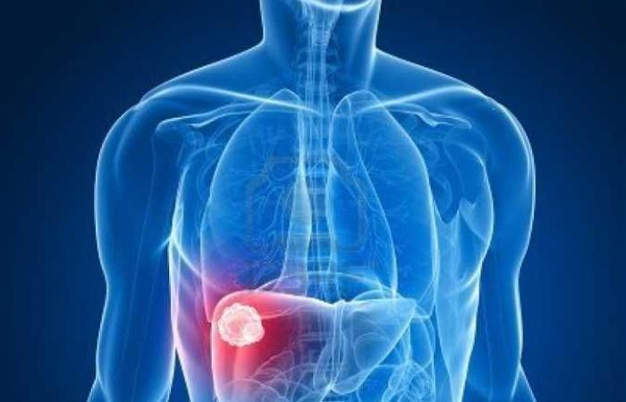 علماء بريطانيون يتوصلون إلى «جين رئيسى» لعلاج أمراض الكبد
