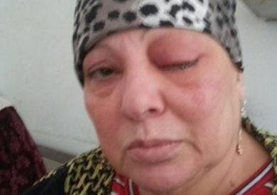 عزيزة إبراهيم إحدى المصابات بالعمى