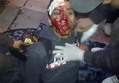 أحد المصابين يتلقى الرعاية الطبية بالمستشفي الميداني