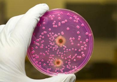 يطاردون الجراثيم التى تطور نفسها