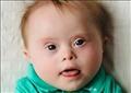 في شهر التوعية.. ما سبب إنجاب أطفال مصابين بمتلازمة داون؟