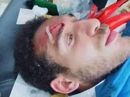 هشام محمد بعد الإعتداء عليه فى تونس