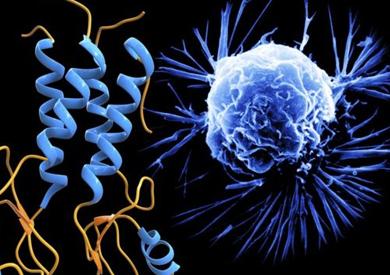 قفزة هائلة في تشخيص سرطان البروستاتا